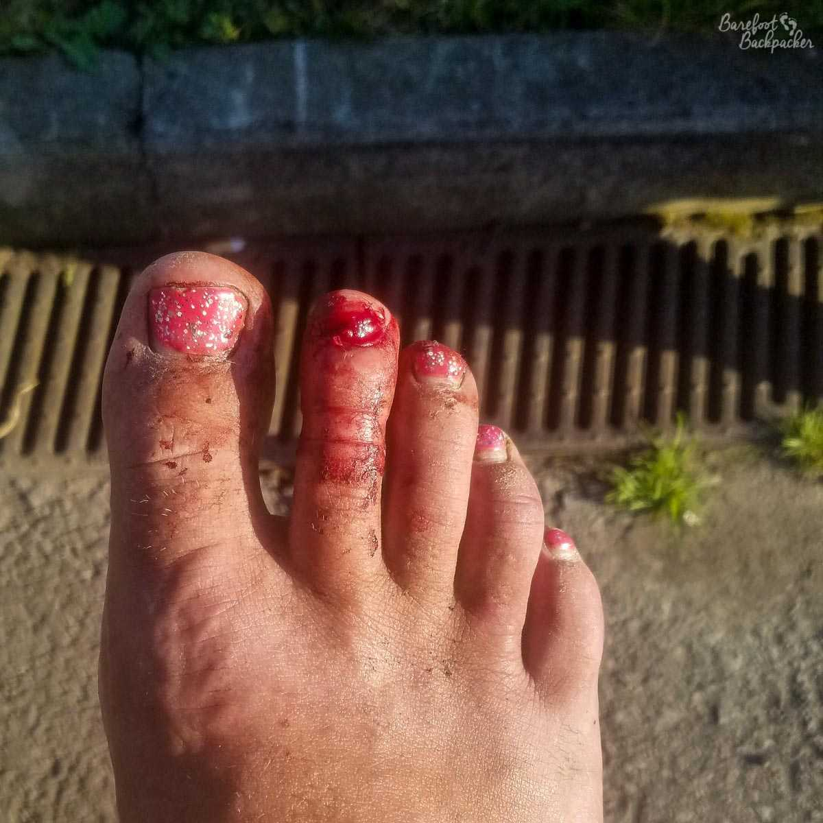 What a toe with a ripped-off toenail looks like